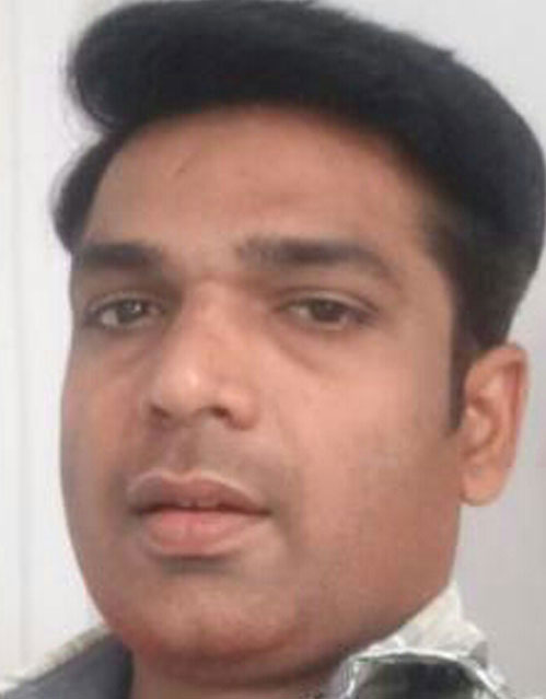 hair-transplant-on-kottayam_after1