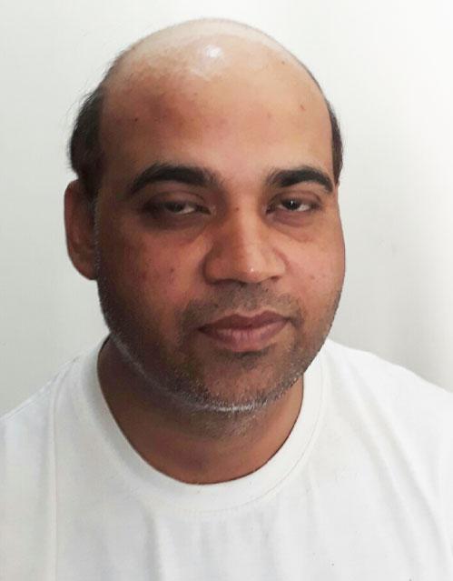 hair-transplant-on-kottayam_before2