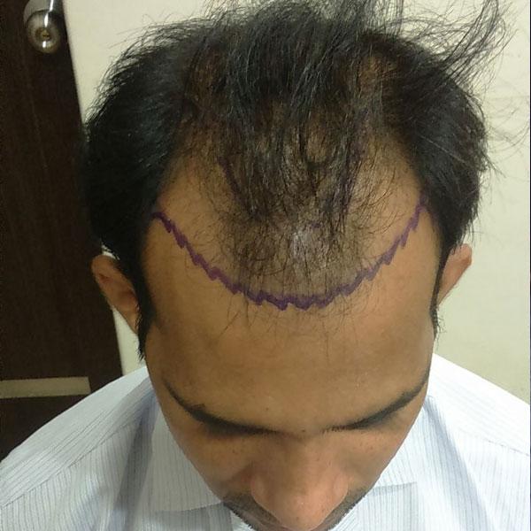 hair-transplant-on-kottayam_before3